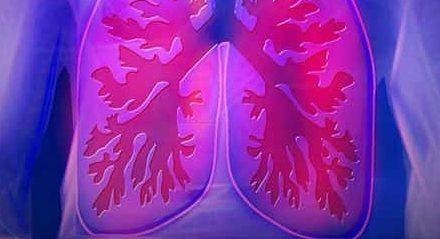 La Universidad de Burgos investigará un nuevo tratamiento para la fibrosis quística en un proyecto de I+D financiado por la Comisión Europea