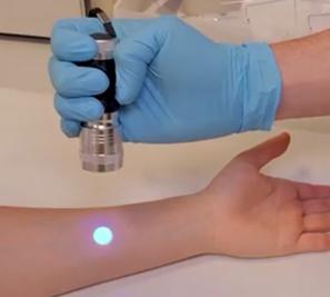 Figura 1. Polímero sensor para los pacientes de fibrosis quística.